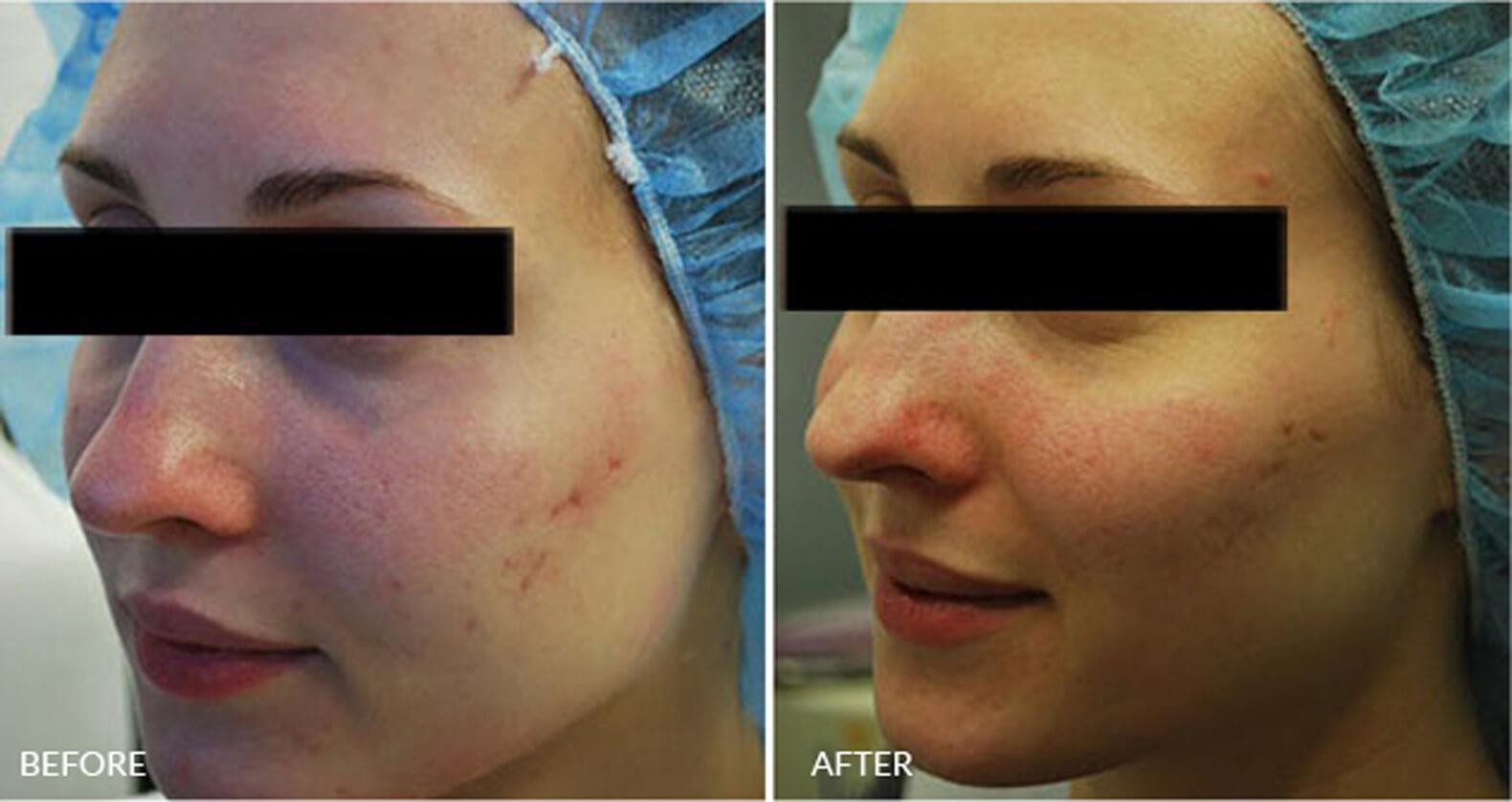 Fractora Acne Scar Treatment Nyc Fade Acne Scars