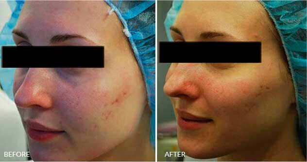 Acne-Scars: Before and After Treatment Photos - Woman (oblique view)