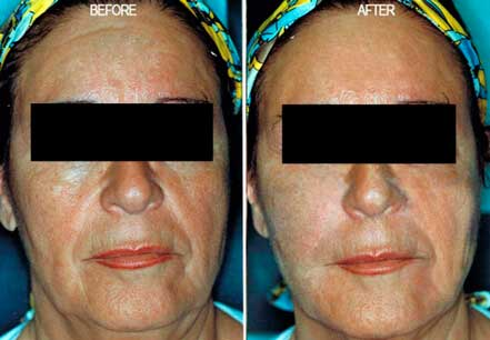 RADIESSE: BEFORE & AFTER PHOTOS - Female, patient 1 (frontal view)