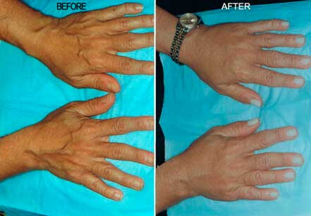 RADIESSE: BEFORE & AFTER PHOTOS - patient 2 (hands)