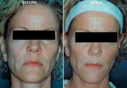 RADIESSE: BEFORE & AFTER PHOTOS - Female, patient 3 (frontal view)
