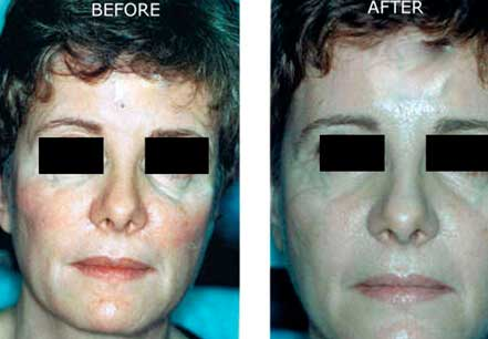 RADIESSE: BEFORE & AFTER PHOTOS - Female, patient 4 (frontal view)