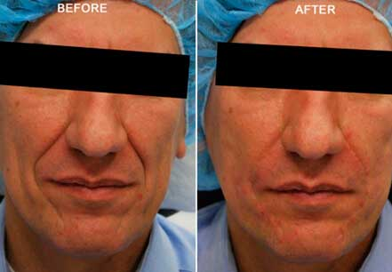 RADIESSE: BEFORE & AFTER PHOTOS - Male, patient 7 (frontal view)