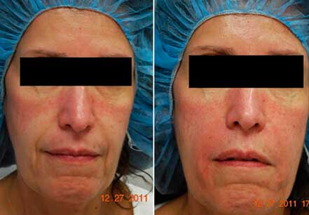 RADIESSE: BEFORE & AFTER PHOTOS - Female, patient 8 (frontal view)