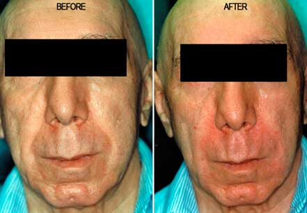 RADIESSE: BEFORE & AFTER PHOTOS - Male, patient 9 (frontal view)