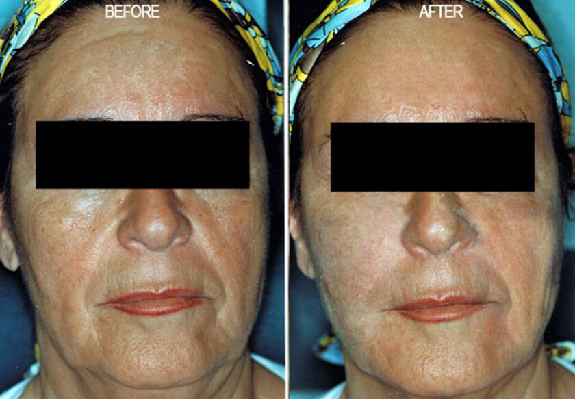 Radiesse® Before & After Photos New York