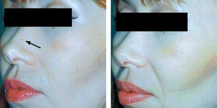 RED SPOT REMOVAL. BEFORE AND AFTER PHOTOS: Patient 4