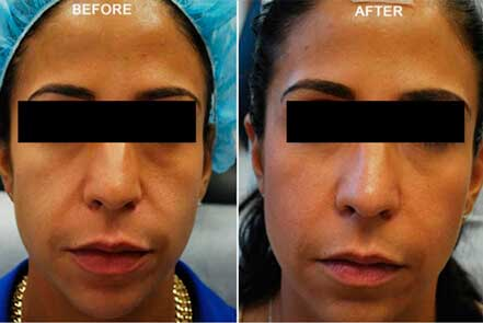 RESTYLANE & PERLANE: BEFORE & AFTER PHOTOS - Female patient 1 (frontal view)