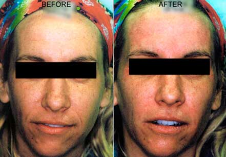 RESTYLANE & PERLANE: BEFORE & AFTER PHOTOS - Female patient 9 (frontal view)