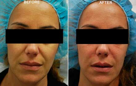RESTYLANE & PERLANE: BEFORE & AFTER PHOTOS - Female patient 10 (frontal view)