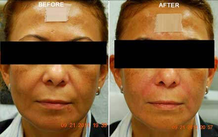 RESTYLANE & PERLANE: BEFORE & AFTER PHOTOS - Female patient 11 (frontal view)