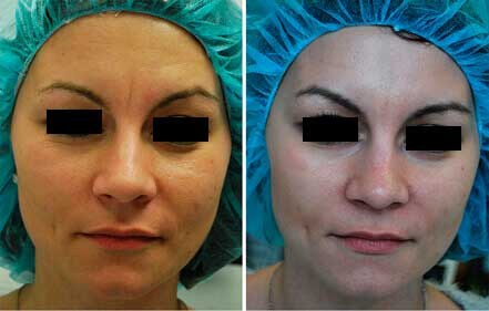 RESTYLANE & PERLANE: BEFORE & AFTER PHOTOS - Female patient 12 (frontal view)