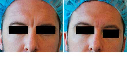 RESTYLANE & PERLANE: BEFORE & AFTER PHOTOS - Male patient 13 (frontal view)