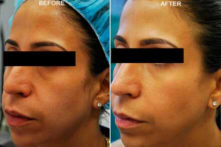 RESTYLANE & PERLANE: BEFORE & AFTER PHOTOS - Female patient 1 (oblique view)