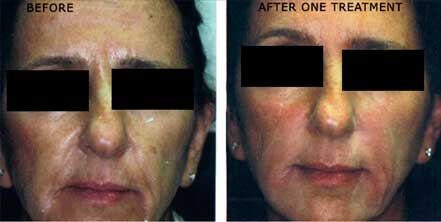 RESTYLANE & PERLANE: BEFORE & AFTER PHOTOS - Female patient 4 (frontal view)