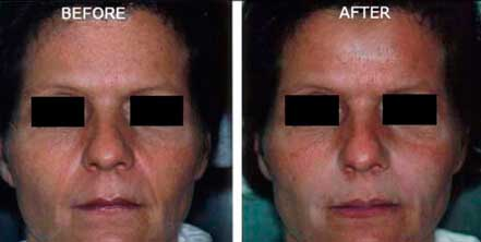 RESTYLANE & PERLANE: BEFORE & AFTER PHOTOS - Female patient 5 (frontal view)