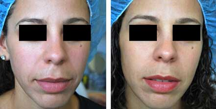 RESTYLANE & PERLANE: BEFORE & AFTER PHOTOS - Female patient 7 (frontal view)