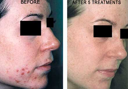 ROSACEA. BEFORE and AFTER PHOTOS: Female (right side, oblique view) patient 1