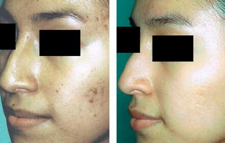 ROSACEA. BEFORE and AFTER PHOTOS: Female (left side, oblique view) patient 7