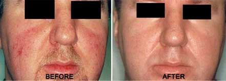 ROSACEA. BEFORE and AFTER PHOTOS: Male (frontal view) patient 7