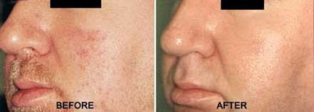 ROSACEA. BEFORE and AFTER PHOTOS: Male (left side, oblique view) patient 8