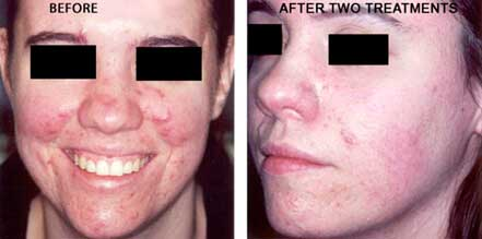 ROSACEA. BEFORE and AFTER PHOTOS: Female (frontal view) patient 9