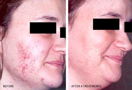 ROSACEA. BEFORE and AFTER PHOTOS: Female (right side, oblique view) patient 10