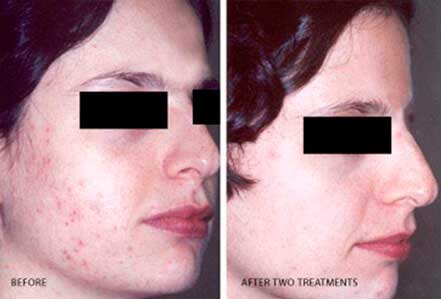 ROSACEA. BEFORE and AFTER PHOTOS: Female (right side, oblique view) patient 11