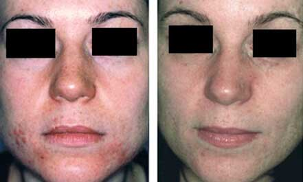 Female face before and after acne treatment, cheek, front photo, patient 19
