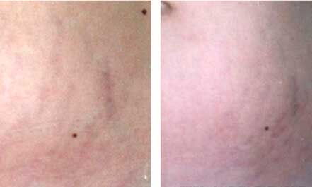 ROSACEA. BEFORE and AFTER PHOTOS: patient 12