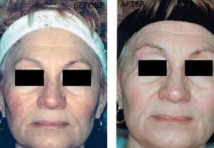 ROSACEA. BEFORE and AFTER PHOTOS: Female (frontal view) patient 1