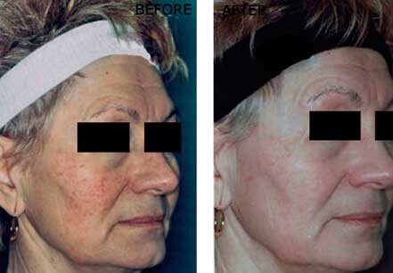 ROSACEA. BEFORE and AFTER PHOTOS: Female (right side, oblique view) patient 2