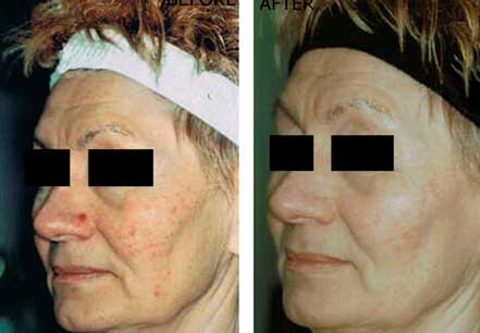 ROSACEA. BEFORE and AFTER PHOTOS: Female (left side, oblique view) patient 3