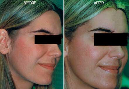 ROSACEA. BEFORE and AFTER PHOTOS: Female (right side, oblique view) patient 4