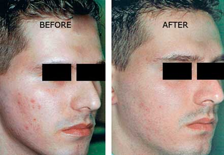 ROSACEA. BEFORE and AFTER PHOTOS: Male (right side, oblique view) patient 4