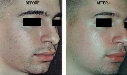 ROSACEA. BEFORE and AFTER PHOTOS: Male (right side, oblique view) patient 5