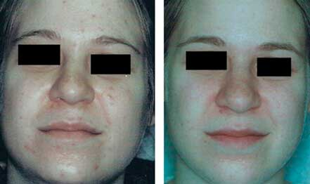 ROSACEA. BEFORE and AFTER PHOTOS: Female (frontal view) patient 6