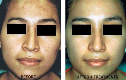 ROSACEA. BEFORE and AFTER PHOTOS: Female (frontal view) patient 7