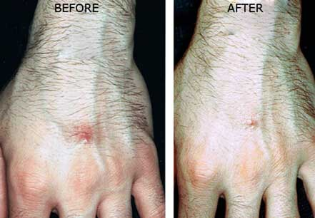 Before and After Treatment Photos: Male (hands, top view)