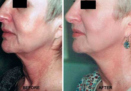 SKIN TIGHTENING. BEFORE And AFTER PHOTOS: Female patient (left side view)