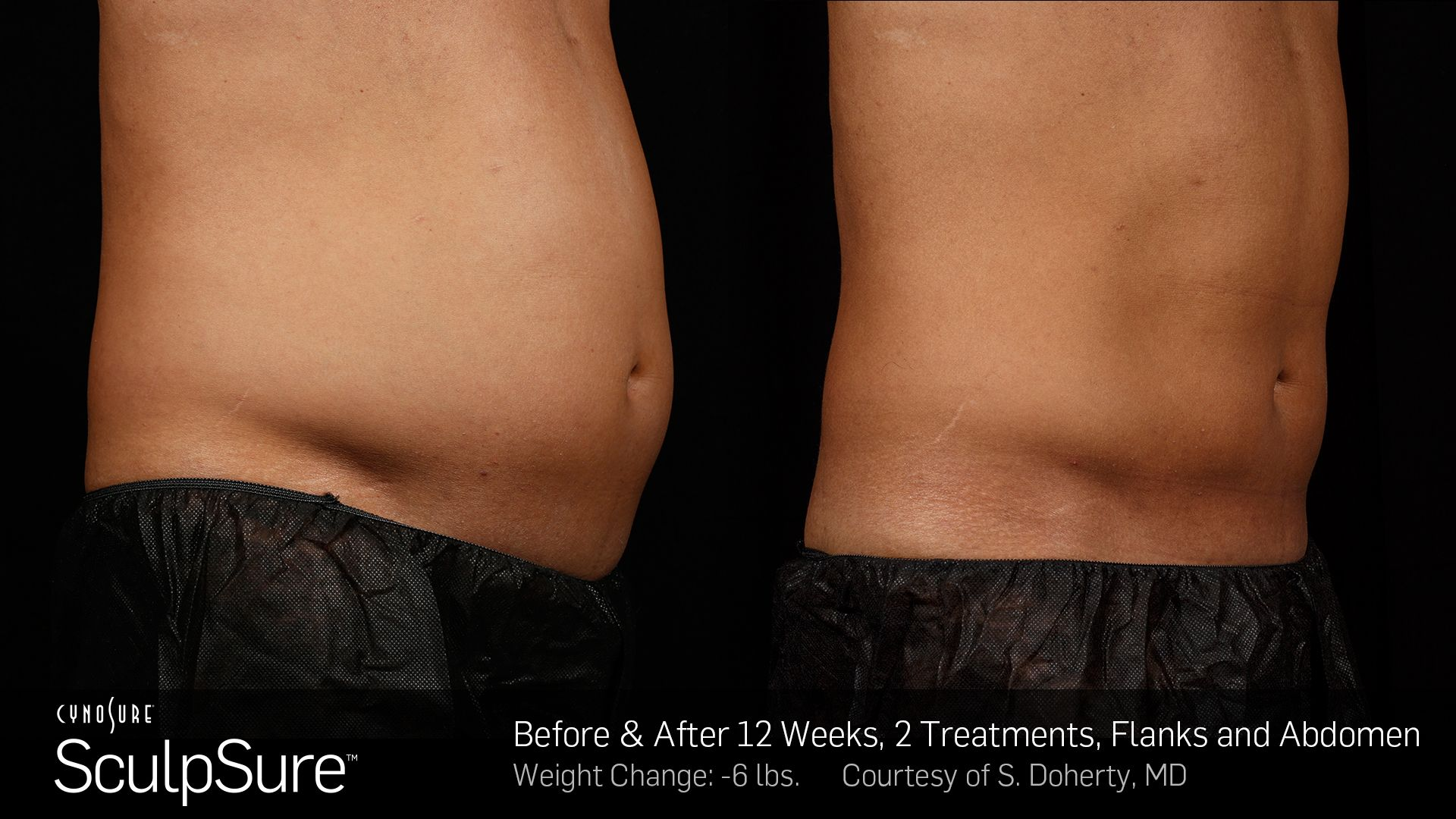 Before and After Photos 12 weeks, 2 Treatment, flanks and abdomen (patient 5, side view)