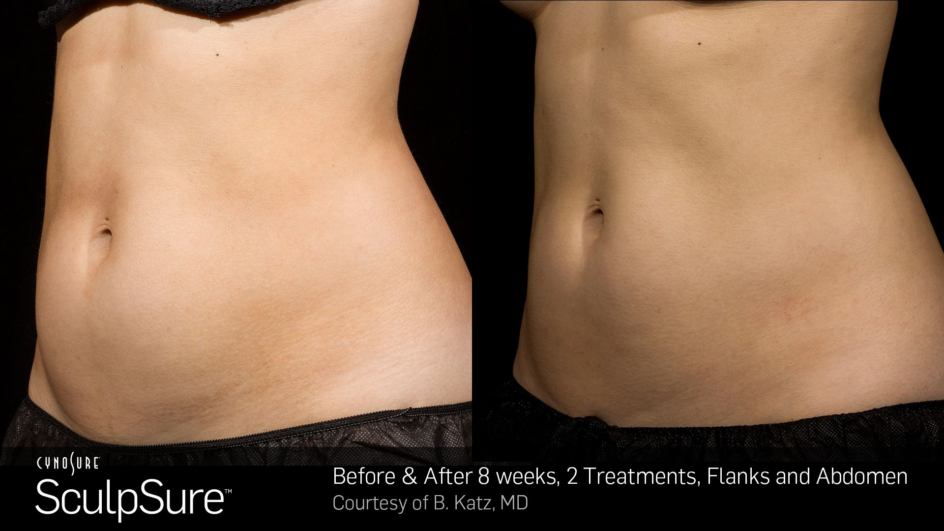 Before and After Photos 8 weeks, 2 Treatment,flanks abdomen (female patient 4, side view)