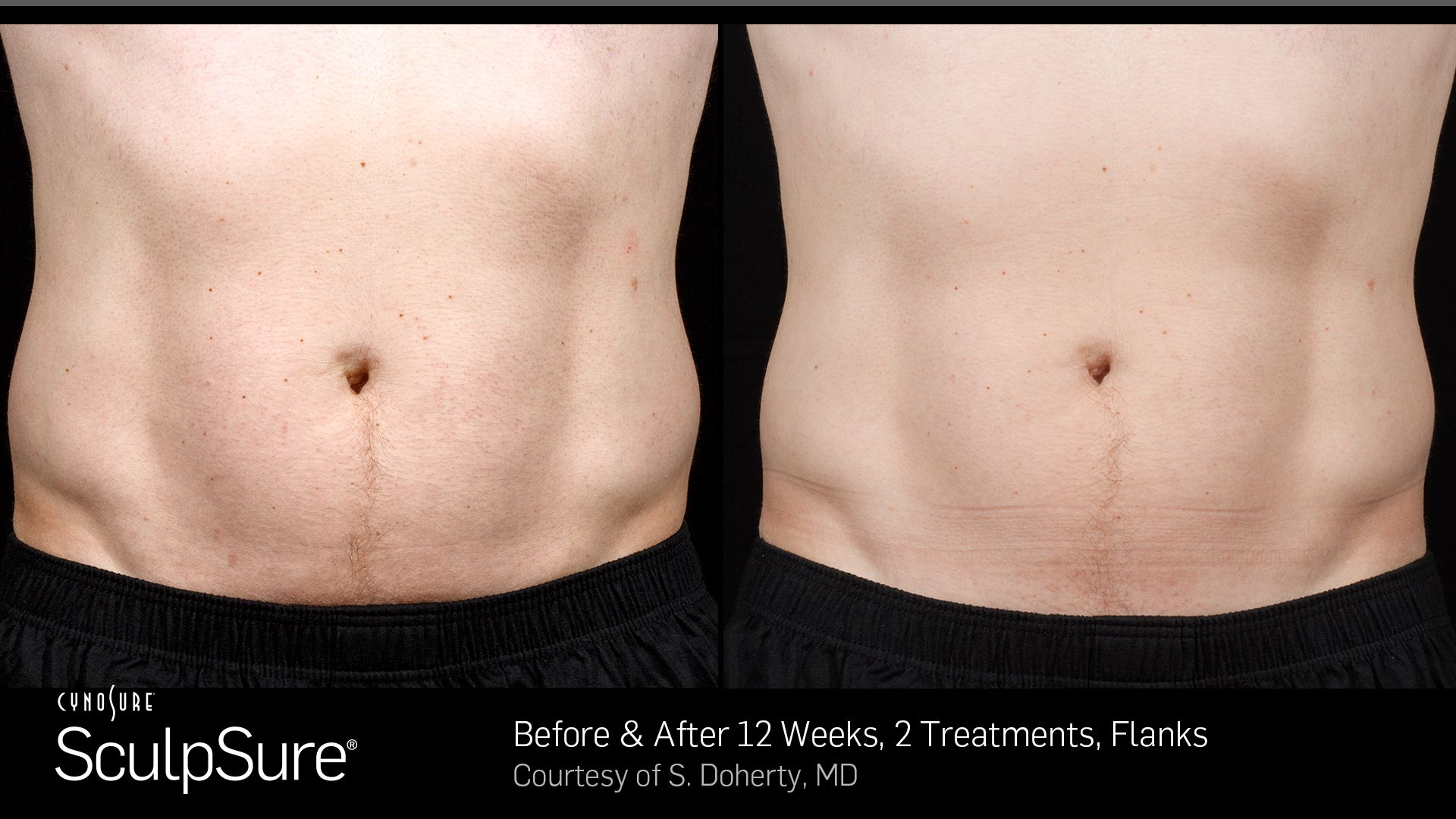 Before and After Photos 12 weeks, 2 Treatments, flanks (male patient 6, frontal view)