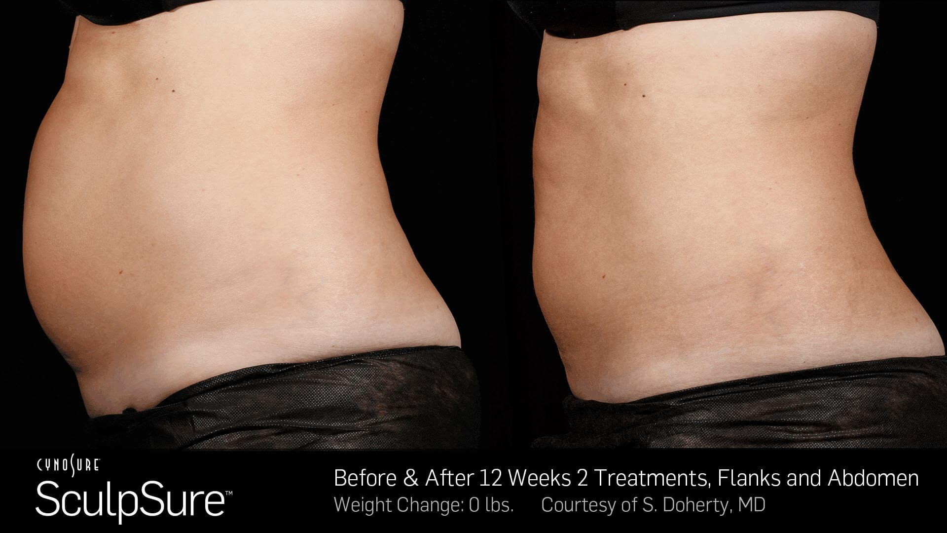 Before and After Photos 12 weeks, 2 Treatment, Flanks and Abdomen (female patient 3, side view)
