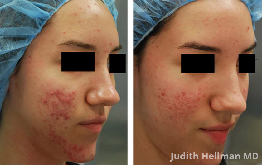 Woman's face, before and after Morpheus8 Treatments, right side oblique view, patient 4