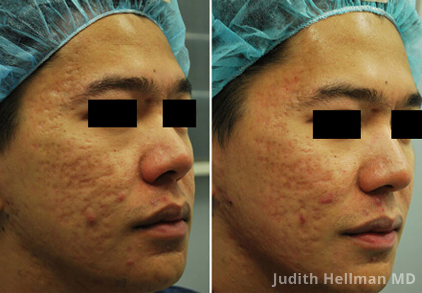 Male face, before and after Morpheus8 Treatments, right side oblique view, patient 7