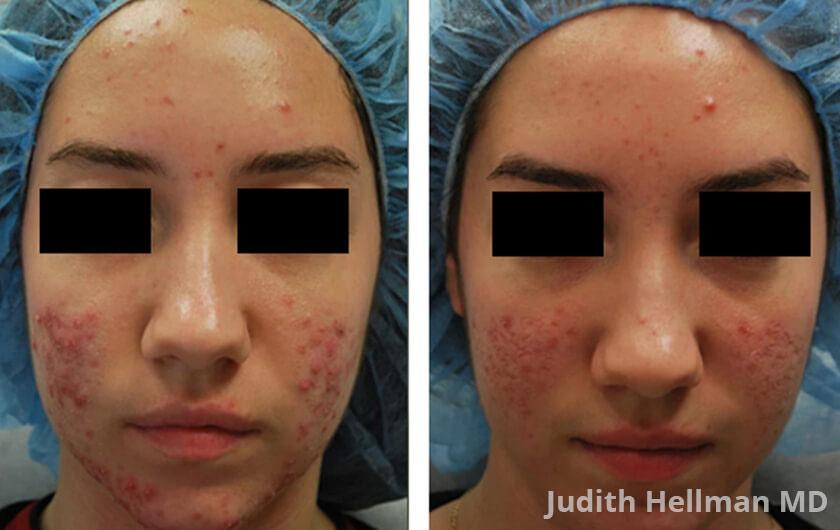 Acne Laser Nyc Best Acne Treatment New York Dr Hellman