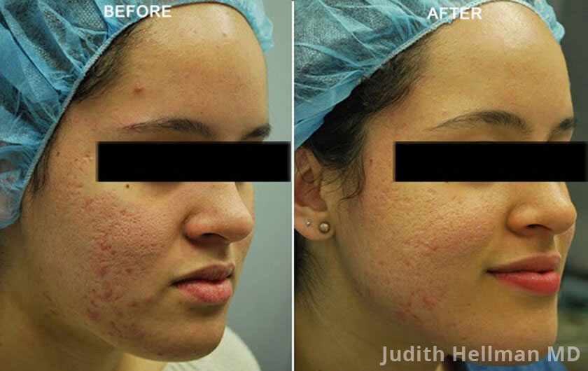 Fractora Acne Scar Treatment Nyc Fade Acne Scars