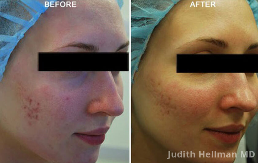 Woman's face, before and after Morpheus8 Treatments, right side oblique view, patient 2