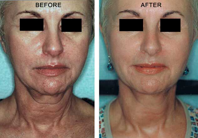 Affirm Multiplex - Before and After Treatment Photos: Female (frontal view)